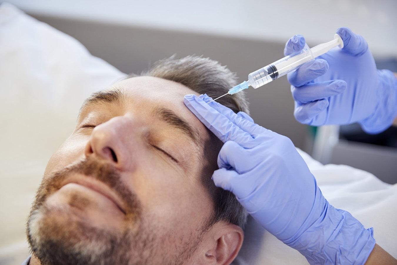 Botox of fillers voor rimpels